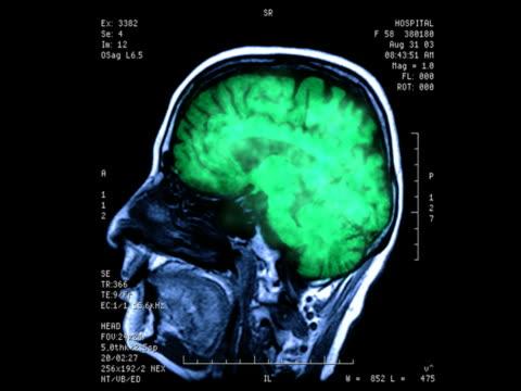 Brainstorm Brainstorm blood flow stock videos & royalty-free footage