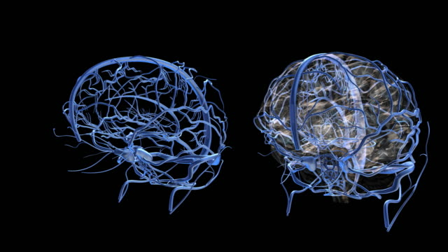 vídeos de stock e filmes b-roll de brain-vein - cerebelo