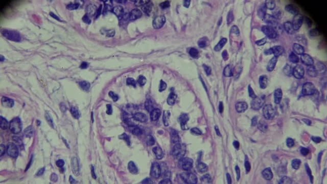 breast cancer under light microscopy - ingrandimento video stock e b–roll