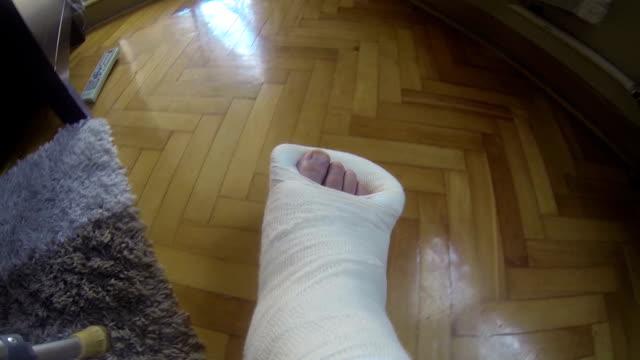 Gebrochenes Bein in einer Besetzung – Video