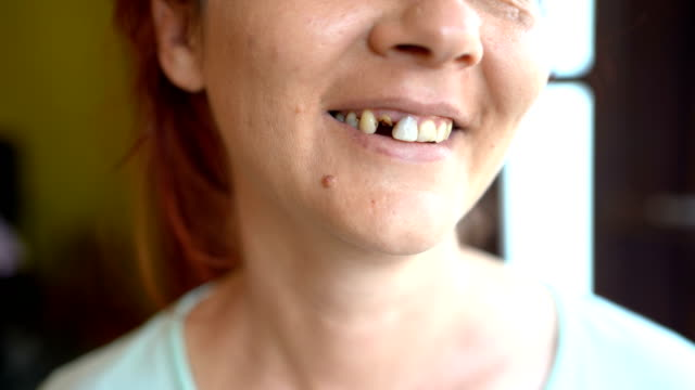 Broken tooth video