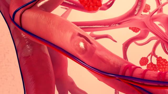vidéos et rushes de bronchiole - nervure