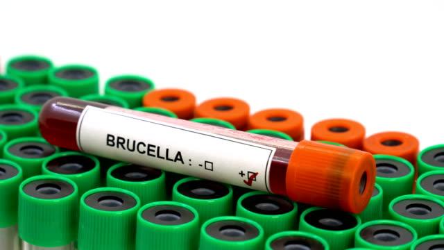 Brucella positive