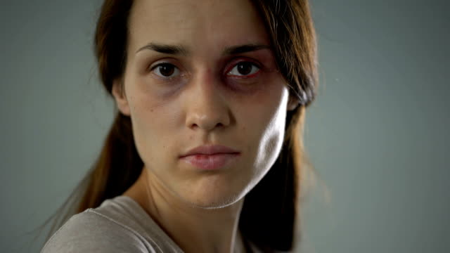 vídeos de stock, filmes e b-roll de mulher machucada, tentando se proteger do agressor, agressão na família, vítima - gênero humano
