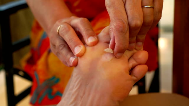 Callus on the foot video