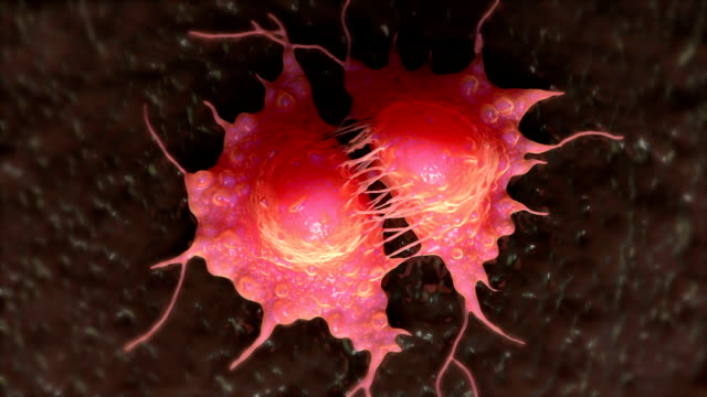 stockvideo's en b-roll-footage met cancer cell division. - breast cancer