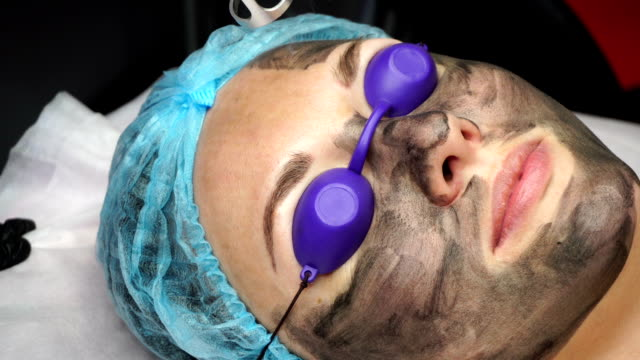 Carbon peeling Beautician laser removes old skin with carbon fiber layer. Processing of forehead area. Carbon peeling. beautician stock videos & royalty-free footage