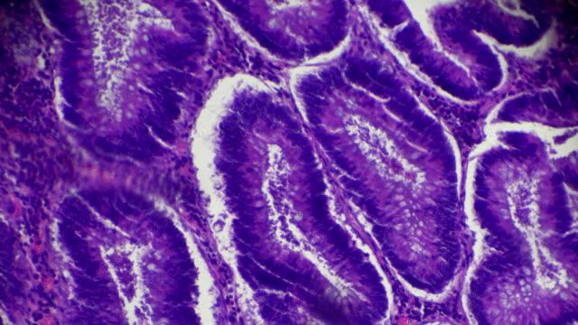 karzinom des dickdarms (gut diff röhrenförmigen adenokarzinom) unter mikroskop - menschlicher verdauungstrakt stock-videos und b-roll-filmmaterial