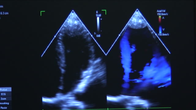 Cardiac Ultrasound 1 video