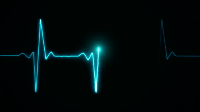 Cardiogram cardiograph oscilloscope screen blue Cardiogram cardiograph oscilloscope screen blue pulse trace stock videos & royalty-free footage