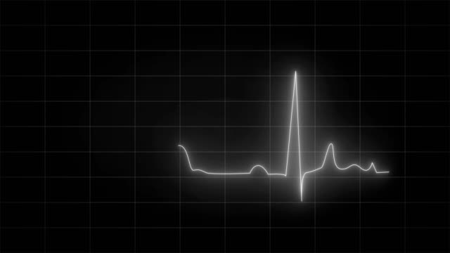 4K Cardiogram - Ecg Animation (black and white)|Loopable