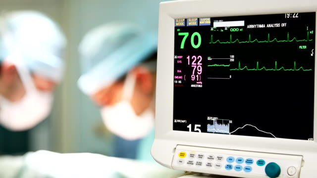 Cardiogram monitoring in operation room video