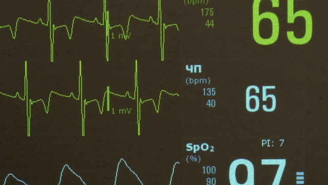 Cardiogram of rhythm of heart and pulse image on monitor during operation.