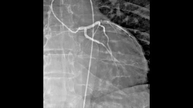 Cardiovascular angiography