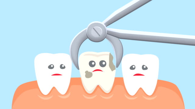 Cartoon Tooth Extraction Dental Animation Reception At The Dentist Stock Video Download Video Clip Now Istock
