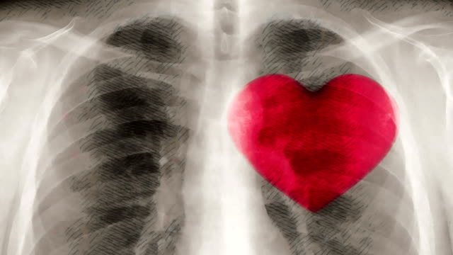 Cartoon x-ray of chest and beating heart.