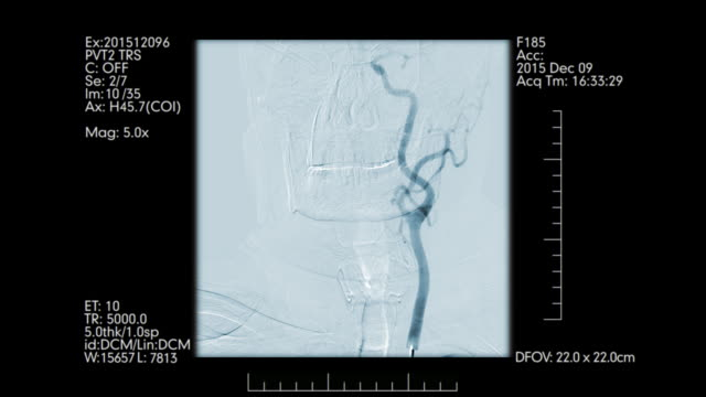 Cerebral angiography monitoring. Front view. Cerebral angiography monitoring front view. Brain vessels angiography diagnostic medical tool stock videos & royalty-free footage
