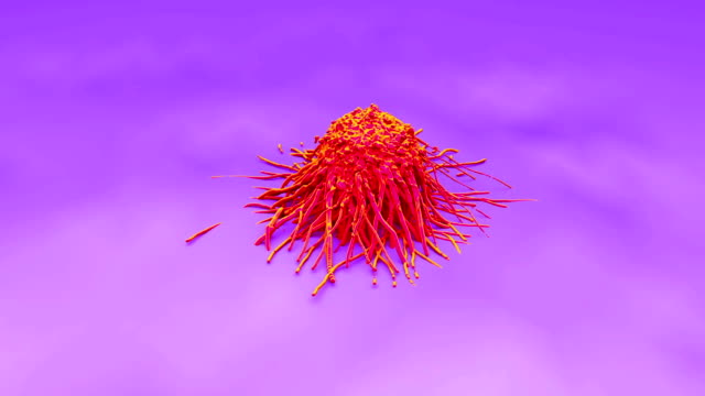 Cervical cancer cell, SEM of Cervical Carcinoma video
