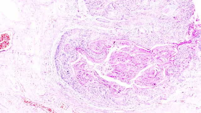 serviks kanseri (skuamöz hücreli karsinom) farklı alanlarda ışık mikroskobu zum altında - rahim boynu stok videoları ve detay görüntü çekimi