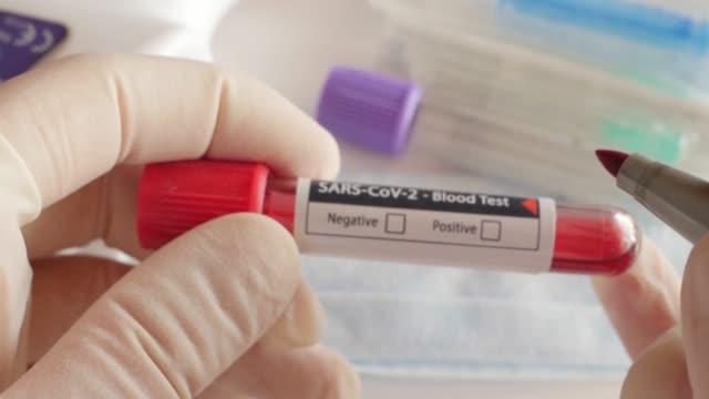 vídeos de stock e filmes b-roll de checking positive result of blood test for coronavirus, covid-19, sars-cov-2 - coroa