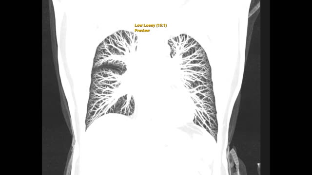 ct chest or ct scan of human chest lung filter technique coronal mip view for diagnosis tb,tuberculosis and covid-19 . - klatka piersiowa tułów filmów i materiałów b-roll