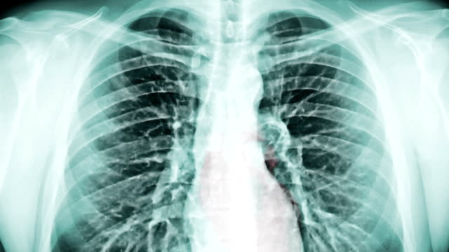 stockvideo's en b-roll-footage met chest x-ray and radiation. (loop ready file) - longen