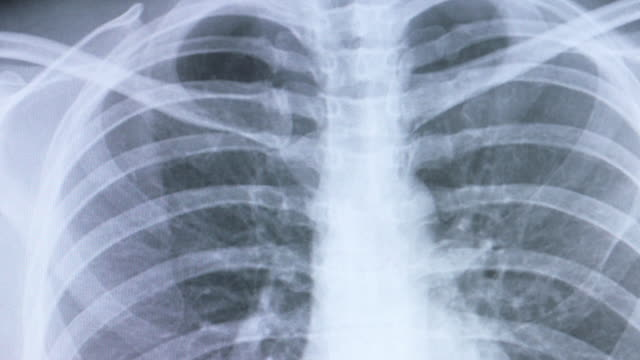 Chest x-ray image Chest x-ray image. mammogram stock videos & royalty-free footage