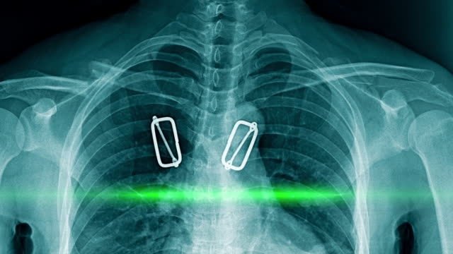 vídeos de stock e filmes b-roll de chest x-ray with scaning animation - pulmão humano