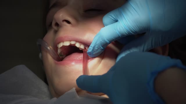 bambino che ha un'operazione di riempimento dentale. - relazione umana video stock e b–roll