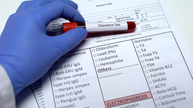 Chloroform test, doctor checking disease in lab blank, showing blood sample Chloroform test, doctor checking disease in lab blank, showing blood sample chlorine stock videos & royalty-free footage
