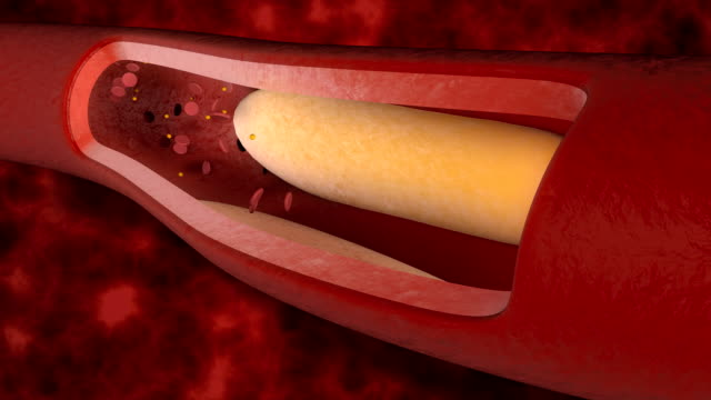 Cholesterol in the blood vessels Animation showing cholesterol in the blood vessels problem. blood clot stock videos & royalty-free footage