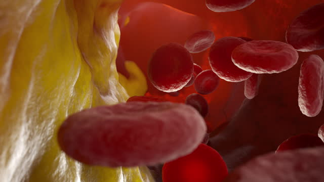 Cholesterol plaque in artery Cholesterol plaque in artery, Blood vessel with flowing blood cells. 3D animation human heart stock videos & royalty-free footage