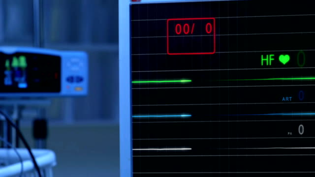cinemagraph of pulse checking e.c.g monitor without pulse - morte video stock e b–roll