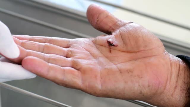 cleaning sutured wound on hand - rana filmów i materiałów b-roll