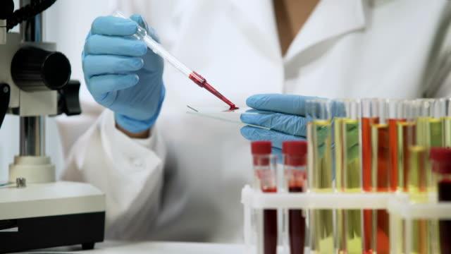kliniska test, laboratorium forskare analysera blodprover under mikroskop - test tube bildbanksvideor och videomaterial från bakom kulisserna