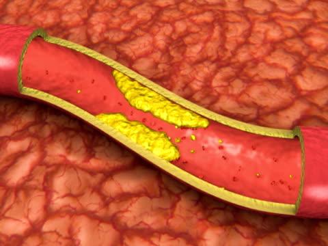 vídeos de stock e filmes b-roll de artéria entupida animação (ntsc, pal - artéria
