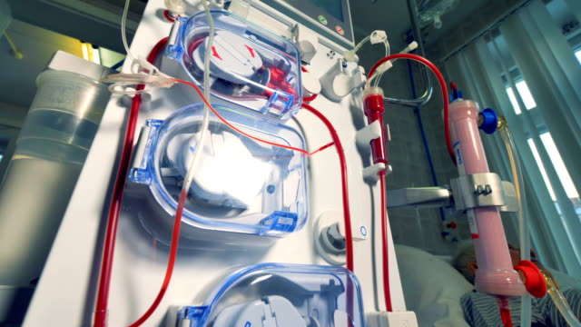 vídeos de stock, filmes e b-roll de uma estreita visão baixa em uma máquina de diálise. - rim órgão interno
