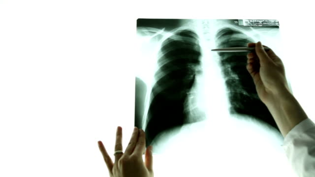 Close up doctor hand pointing on x-ray image of lungs video
