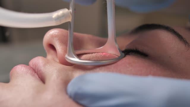 nahaufnahme eines jungen mädchens immer laser-gesichtsbehandlung in einem medizinischen zentrum, hautverjüngung konzept. kosmetische chirurg arzt gibt fraktionierte co2-laser-hautbehandlung an eine patientin - kosmetische behandlung stock-videos und b-roll-filmmaterial