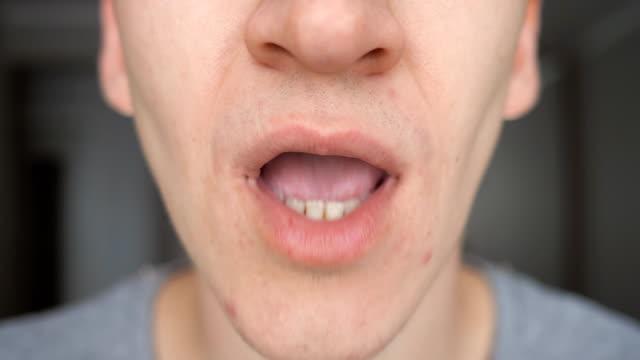 närbild av man sätter p-piller i munnen - amfetamin pills bildbanksvideor och videomaterial från bakom kulisserna