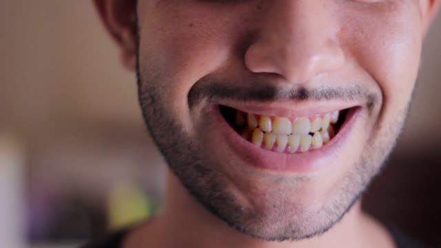 nahaufnahme von lächelnden mann gesicht mit gelben zähnen konzept der schlechten mundpflege - verbogen stock-videos und b-roll-filmmaterial