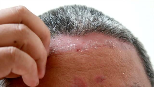 4K Close up shot hands of man scratching skin rash Dermatitis psoriasis patient itchy scratch wound video