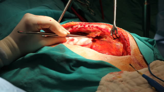 vídeos de stock, filmes e b-roll de close-up vista de abrir cirurgia cardíaca - marcapasso cirurgia cardíaca