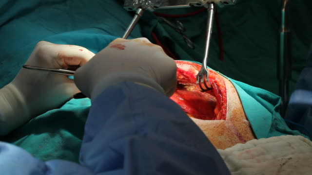 Close up view of open heart surgery video