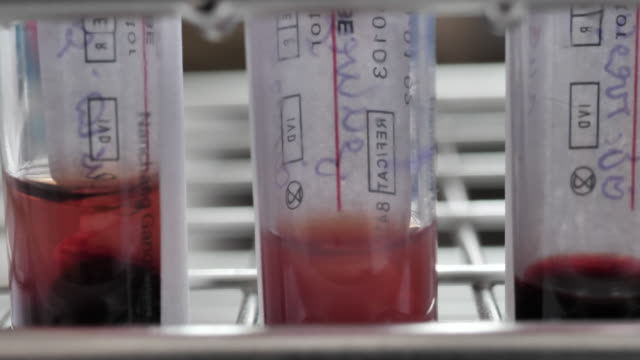 Close-up Blood samples in tubes