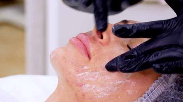 close-up, cosmetician in black medical gloves applies evenly cosmetic cream or sunscreen to female face. skincare, sun protection concept. cosmetology, beauty salon. medicine video