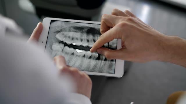 x-ışını tablet üzerinde seyir yakın çekim diş hekimleri - diş sağlığı stok videoları ve detay görüntü çekimi