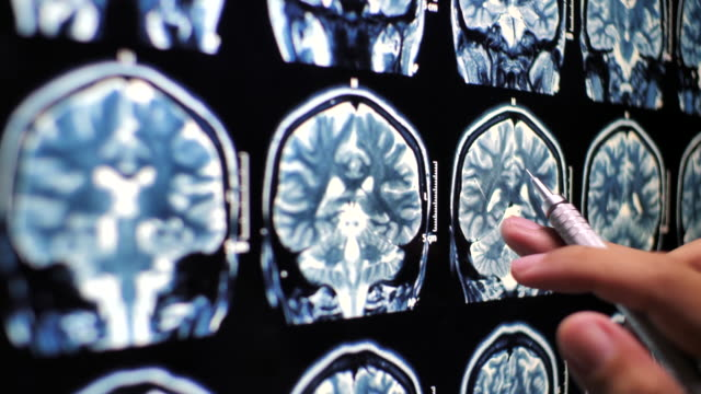 Close-up Doctor hand checking on Human Brain x-ray image