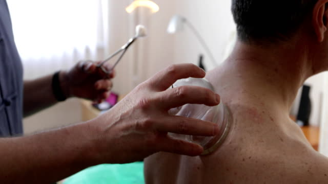 närbild läkare sätter banker på en man - massageterapeut bildbanksvideor och videomaterial från bakom kulisserna