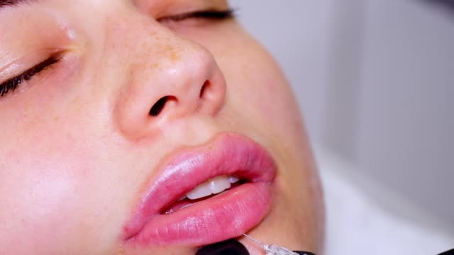 close-up, female face. surgeon, in medical gloves, carefully and slowly injects hyaluronic acid into woman's lips with a syringe. lip augmentation procedure. beauty injections. plastic surgery - collagene video stock e b–roll